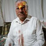 Kayseri'de Refah Partisi Başkanına Saldırı !